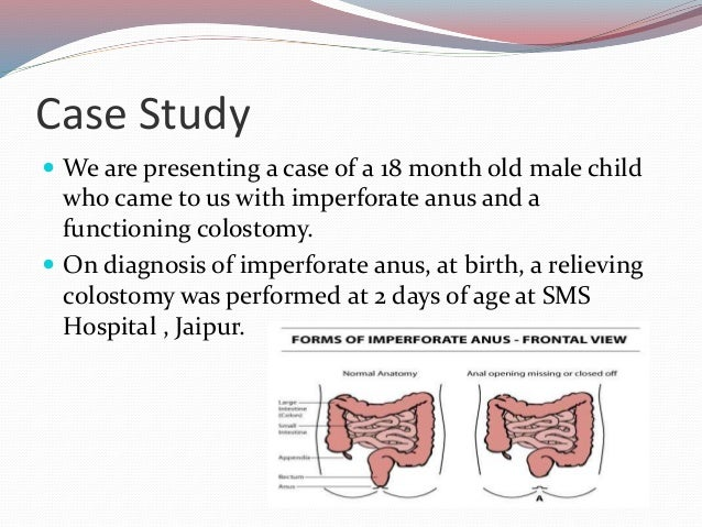 Etiology of imperforate anus