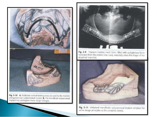  A successfully osseointegrated implant provides a direct and relatively rigid connection of the implant to the bone.  A...