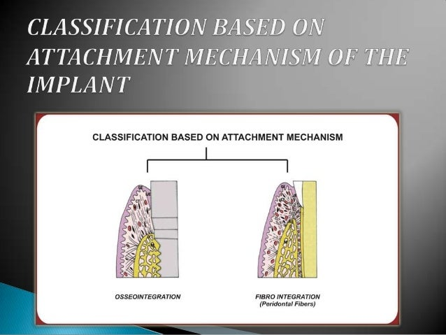  Micro rough surfaces ◦ Better bone apposition ◦ Higher percentage of bone in contact with the implant ◦ Influence the me...