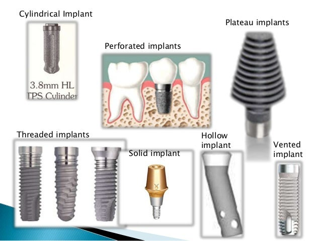 Increase the functional surface of implant-bone interface Effective stress transfer Promote bone apposition Improved osseo...