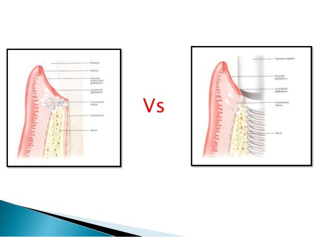  The first bone tissue formed is woven bone.  characterized by a random, felt-like orientation of its collagen fibrils, ...