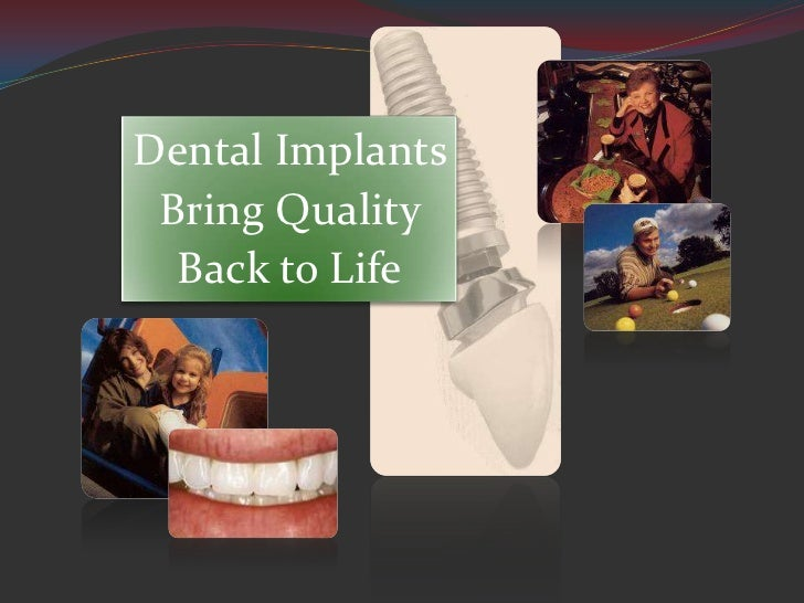 Dental Implants Bring Quality  Back to Life
