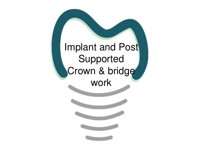 Implant and Post Supported Crown & bridge work