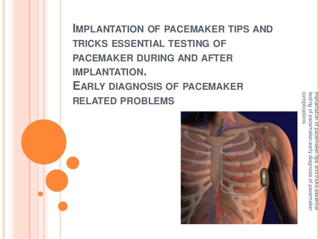 IMPLANTATION OF PACEMAKER TIPS AND TRICKS ESSENTIAL TESTING OF PACEMAKER DURING AND AFTER IMPLANTATION. EARLY DIAGNOSIS OF...