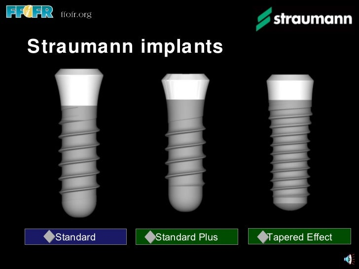 Implant components and basic techniques3