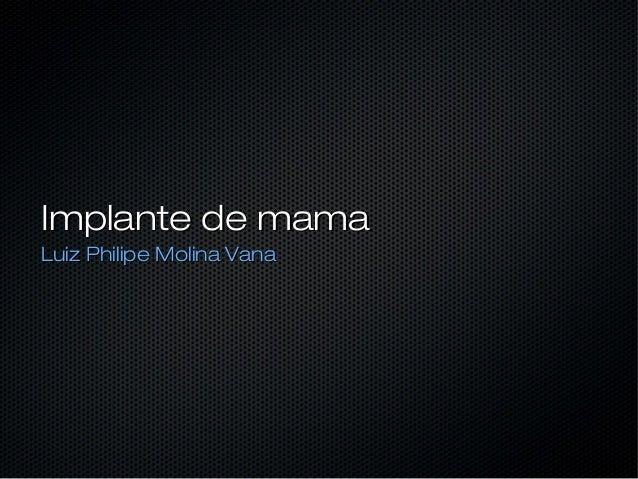 Implante de mama Luiz Philipe Molina Vana