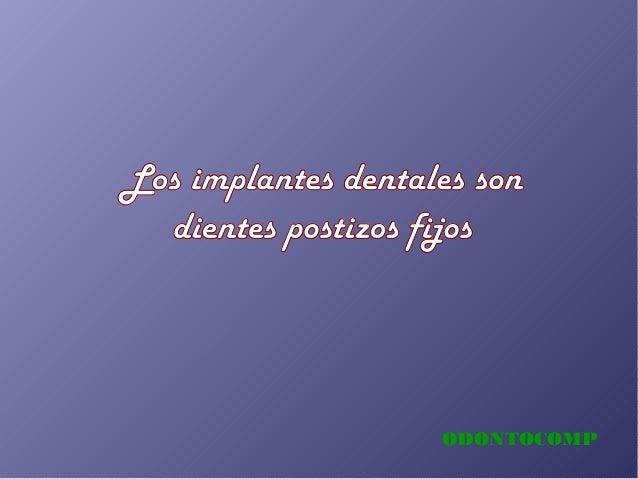 ODONTOCOMP Los implantes dentales son dientes postizos fijos