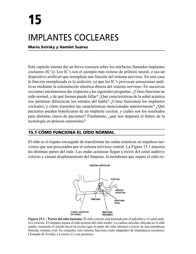 Implantes Cocleares
