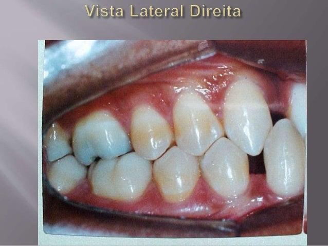 Implantes em conjunto com a ortodontia Slide 2