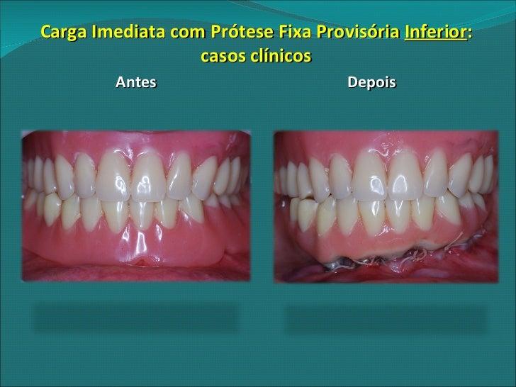 f68365fa2551 Carga Imediata com Prótese Fixa Provisória Inferior : casos clínicos Antes  Depois; 24.