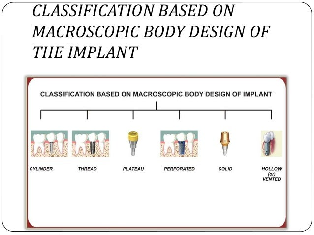 Peri implant anatomy function and biology classification based on attachment mechanism of the implant 17 classification based on macroscopic body design malvernweather Choice Image