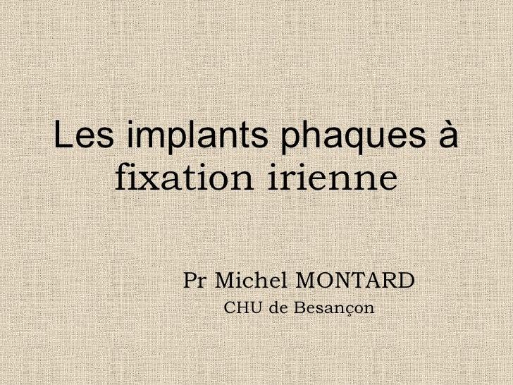 Les implants phaques à  fixation irienne Pr Michel MONTARD CHU de Besançon