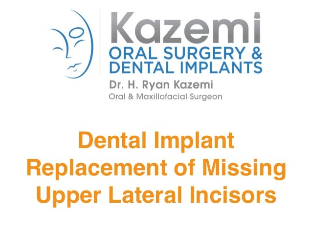 Dental Implant  Replacement of Missing  Upper Lateral Incisors