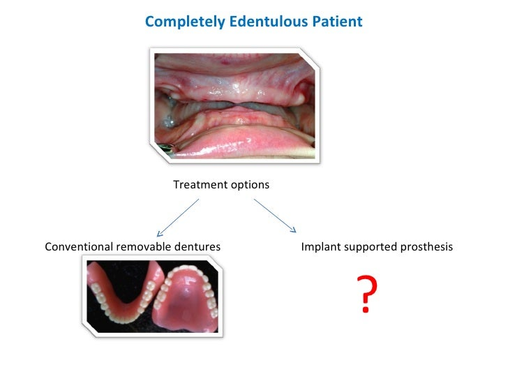 Completely Edentulous Patient Treatment options Conventional removable dentures Implant supported prosthesis ?