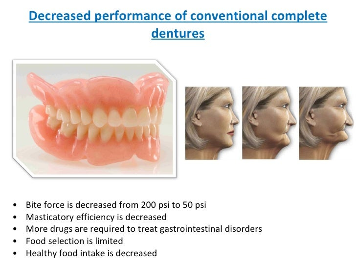 Decreased performance of conventional complete dentures <ul><li>Bite force is decreased from 200 psi to 50 psi </li></ul><...