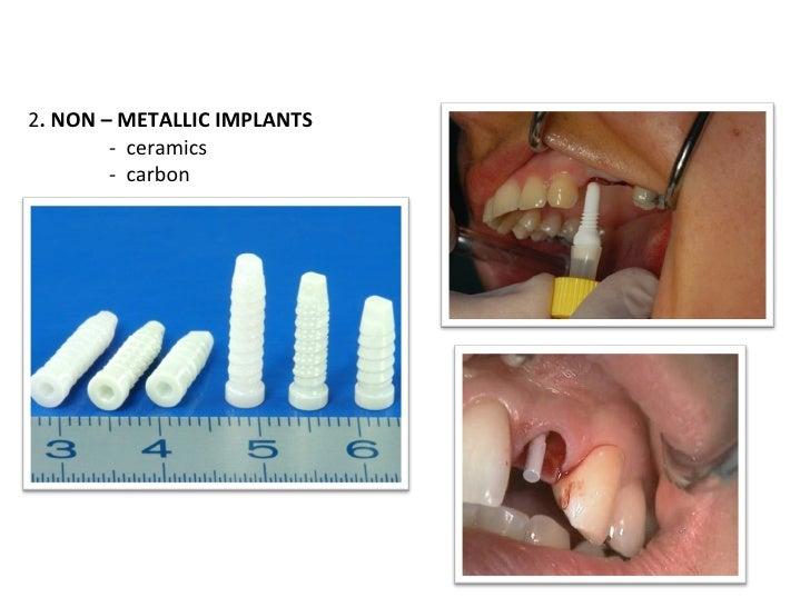2 . NON – METALLIC IMPLANTS -  ceramics -  carbon