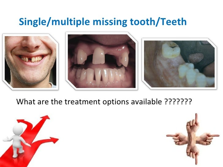 Single/multiple missing tooth/Teeth What are the treatment options available ???????