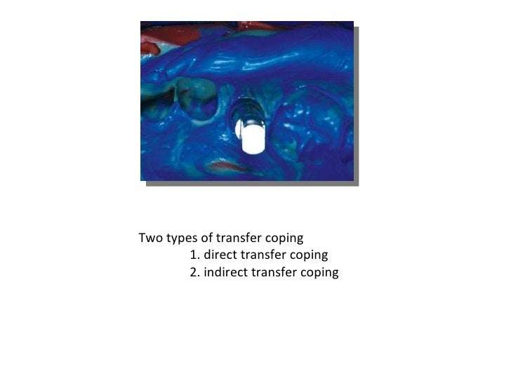 Two types of transfer coping 1. direct transfer coping 2. indirect transfer coping