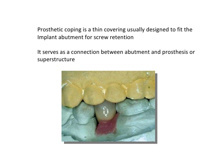 Prosthetic coping is a thin covering usually designed to fit the Implant abutment for screw retention  It serves as a conn...