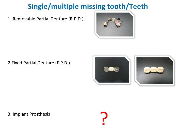 Single/multiple missing tooth/Teeth <ul><li>1. Removable Partial Denture (R.P.D.) </li></ul><ul><li>2.Fixed Partial Dentur...