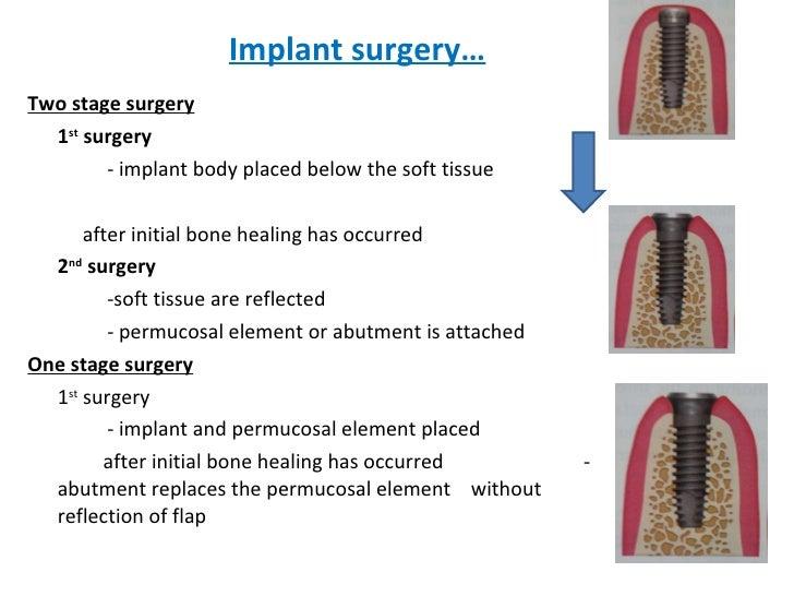 Implant surgery… <ul><li>Two stage surgery </li></ul><ul><li>1 st  surgery </li></ul><ul><li>- implant body placed below t...