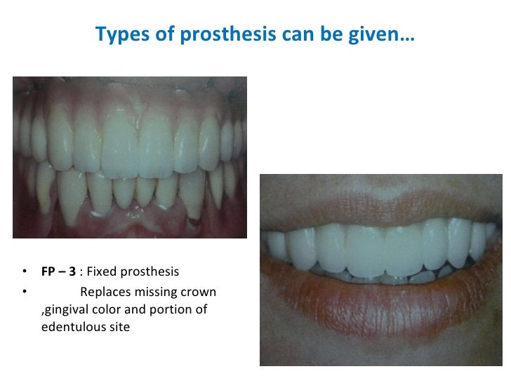 Types of prosthesis can be given… <ul><li>FP – 3  : Fixed prosthesis </li></ul><ul><li>Replaces missing crown ,gingival co...