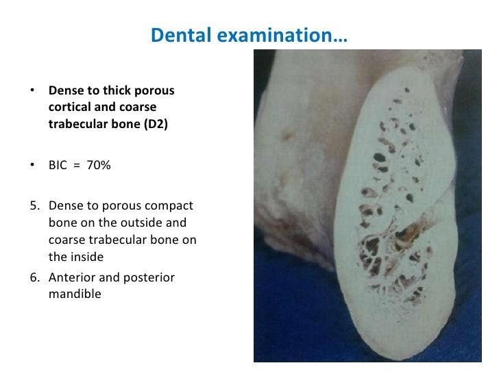 Dental examination… <ul><li>Dense to thick porous cortical and coarse trabecular bone (D2)  </li></ul><ul><li>BIC  =  70% ...