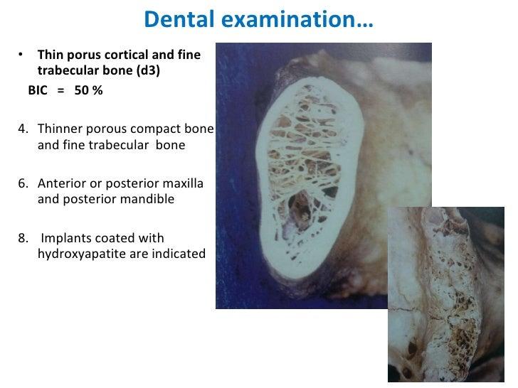 Dental examination… <ul><li>Thin porus cortical and fine trabecular bone (d3) </li></ul><ul><li>BIC  =  50 % </li></ul><ul...