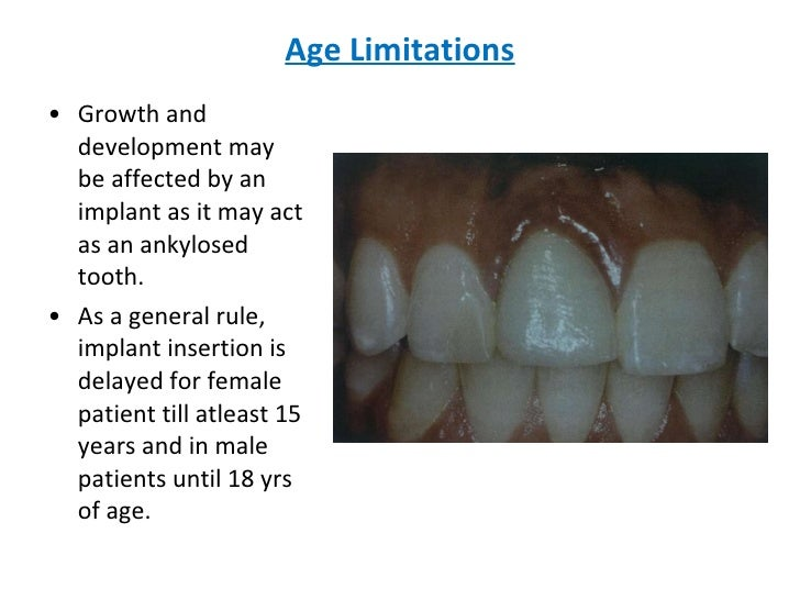 Age Limitations <ul><li>Growth and development may be affected by an implant as it may act as an ankylosed tooth. </li></u...