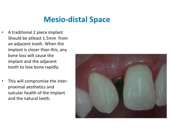 Mesio-distal Space <ul><li>A traditional 2 piece implant Should be atleast 1.5mm  from an adjacent tooth. When the implant...