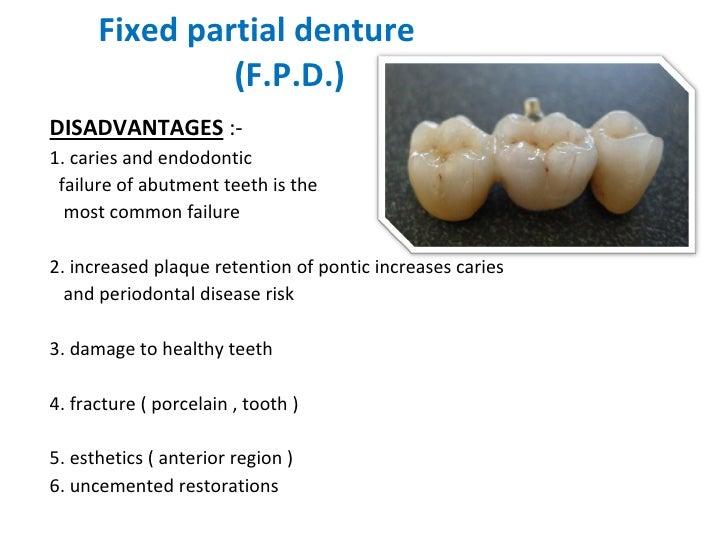 Fixed partial denture    (F.P.D.) <ul><li>DISADVANTAGES  :- </li></ul><ul><li>1. caries and endodontic  </li></ul><ul><li>...
