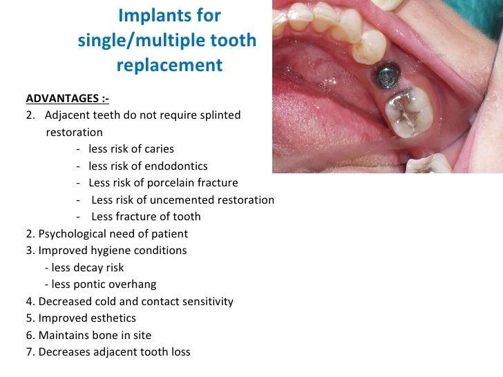 Implants for  single/multiple tooth  replacement <ul><li>ADVANTAGES :- </li></ul><ul><li>Adjacent teeth do not require spl...