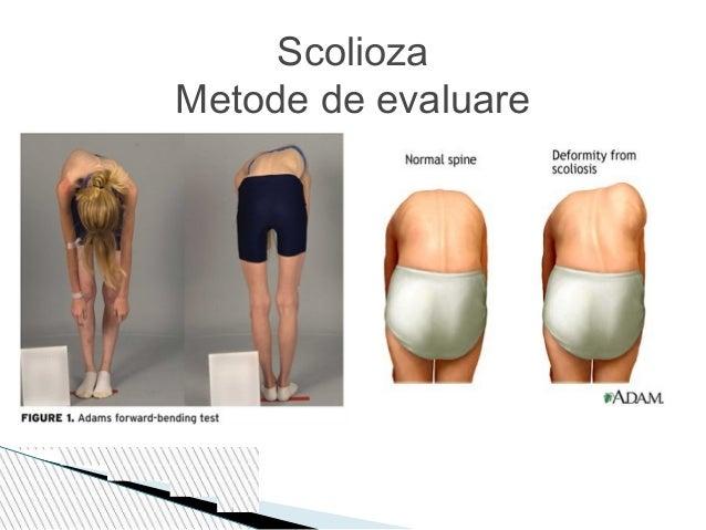 Nii Burdenko tratamentul herniei spinale