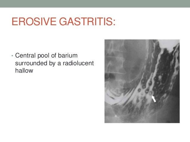 Gastritis Buscopan