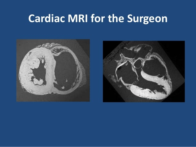 Importance of imaging for the cardiac surgeon