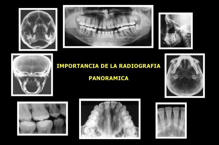 IMPORTANCIA DE LA RADIOGRAFIA PANORAMICA Dr. Daniel Mendoza Alarcón Mail:   [email_address]