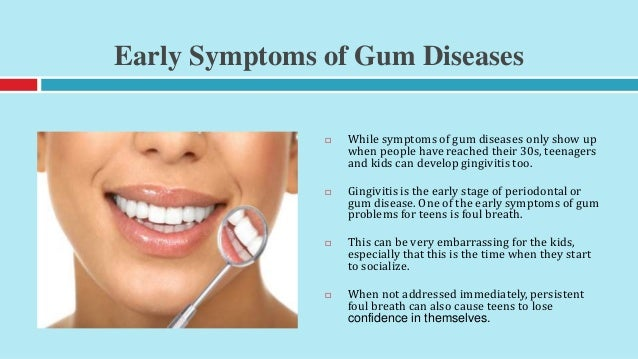 Important Gum Disease Prevention Tips for Kids