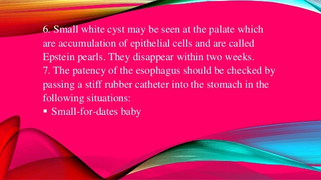  Single umbilical artery  Polyhydramnios  Excessive drooling of saliva o If there is no esophageal atresia and the cath...