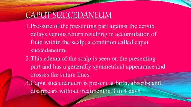 CAPUT SUCCEDANEUM
