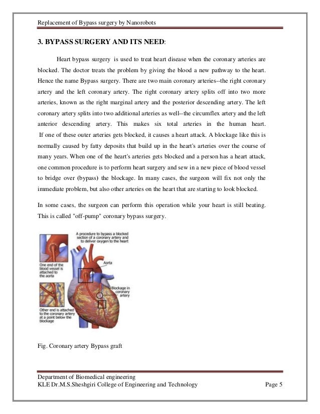 essay on heart surgery Mrs x, however, underwent an off pump cabg meaning that her heart continued to beat throughout the procedure but the tissue being operated on was held in place with an octopus, a suction device used to stabilise the heart during surgery.