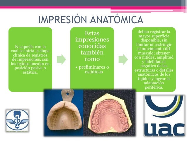 Impresión anatomica
