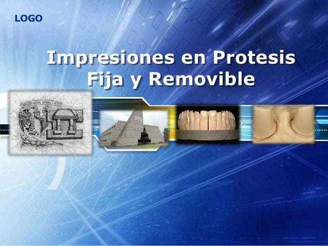 LOGO Impresiones en Protesis Fija y Removible