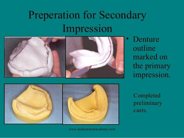 impression procedures comlete denture  dental courses