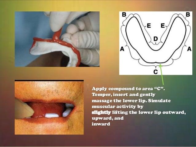 Impressions In Complete Dentures