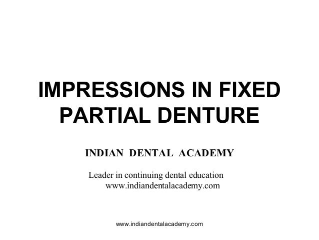 IMPRESSIONS IN FIXED PARTIAL DENTURE INDIAN DENTAL ACADEMY Leader in continuing dental education www.indiandentalacademy.c...