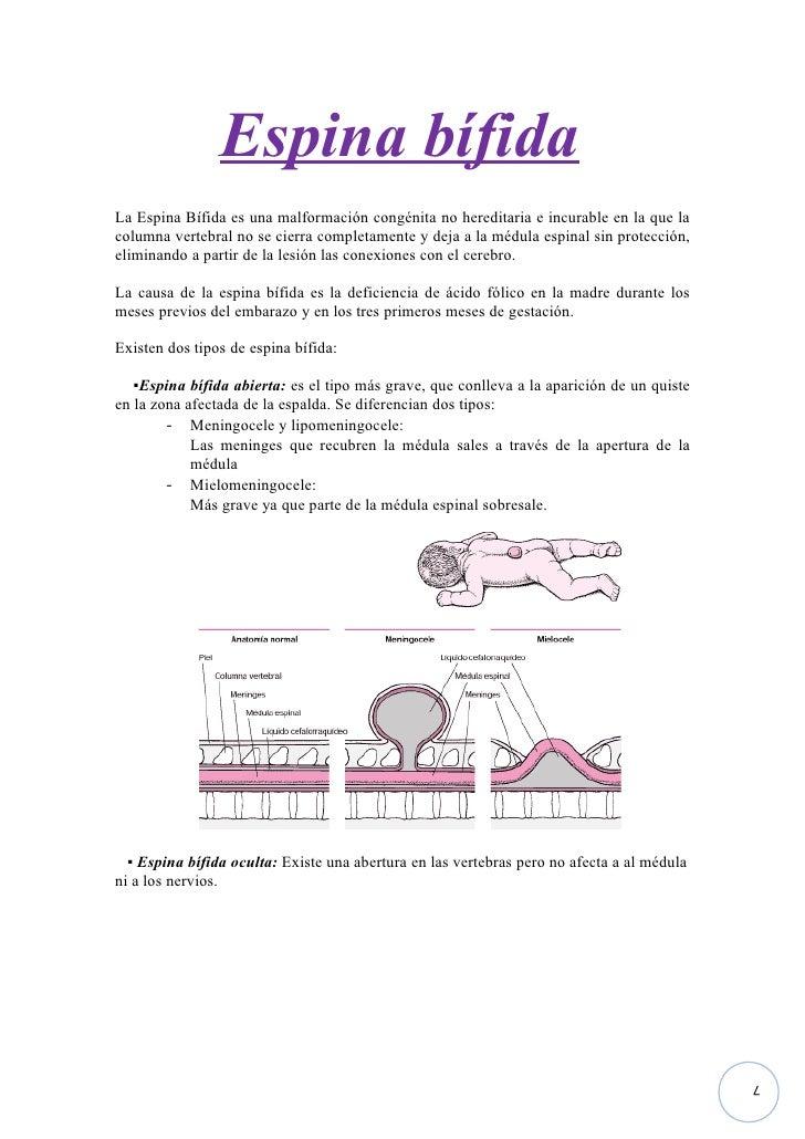 Imprimir 2 espina bifida