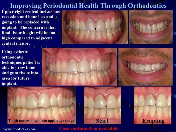Improving Gum Tissue Health Through Orthodontics