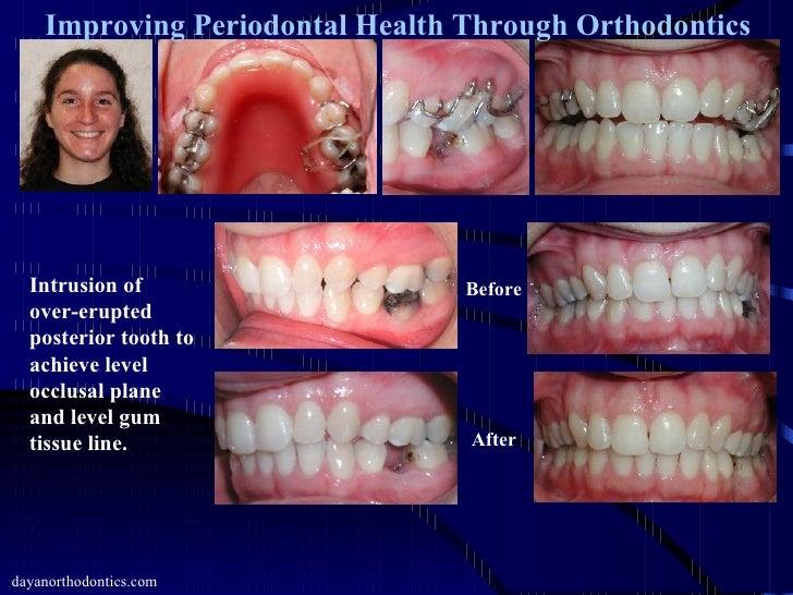 Amazoncom  Epic Dental 100 Xylitol Sweetened Gum