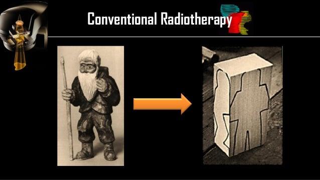 Intensity Modulated Radiation Therapy (IMRT) Slide 3