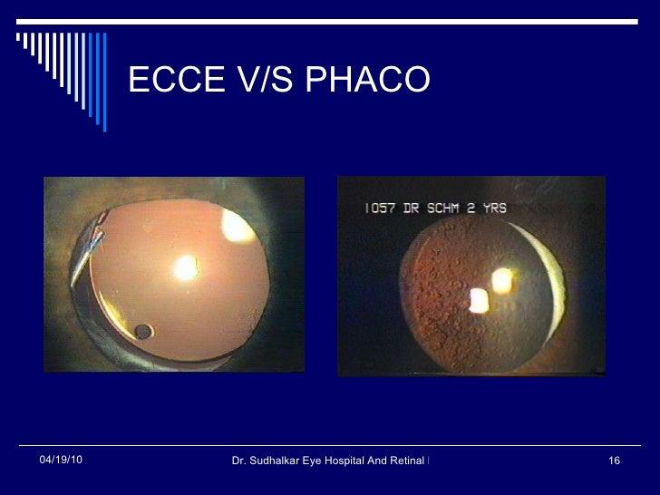 ECCE V/S PHACO